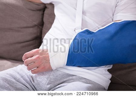 Close-up Photo Of A Fractured Man's Hand