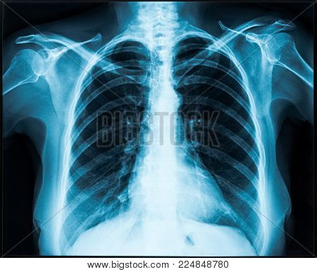 Old Woman thorax x-ray for lungs examination