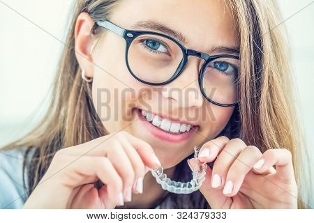 Dental Invisible Braces Or Silicone Trainer In The Hands Of A Young Smiling Girl. Orthodontic Concep