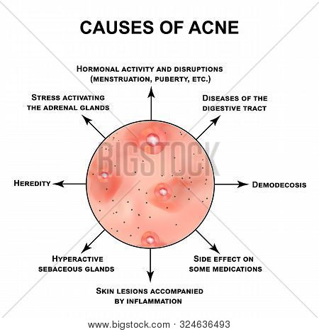 Causes Of Acne. Pustules, Papules, Comedones, Blackheads, Acne On The Skin. Infographics. Illustrati