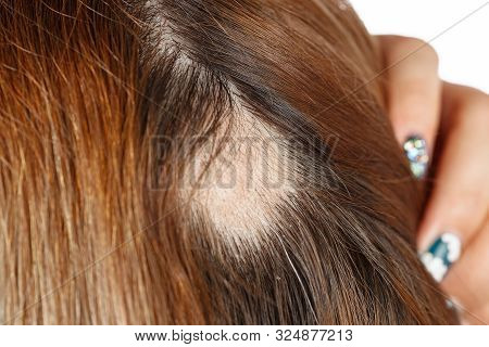 30 Year Old Caucasian Woman With Spot Alopecia, Bald Spot On Her Head