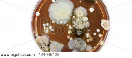 Petri dish with colonies of bacteria