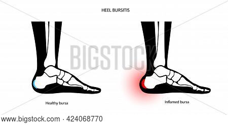 Heel Bursitis Inflammation. Inflamed Bursa In Human Ankle. Achilles Tendon And Foot Disease, Pain An