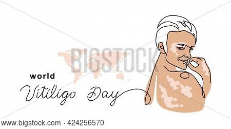 Vitiligo Skin Simple Vector Banner, Poster, Background. Person With Skin Pigmentation. One Continuou