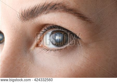 Closeup View Of Woman Suffering From Cataract