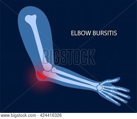 Olecranon Joint Bursitis. Inflamed Bursa. Student Elbow Disease, Pain And Deformity In The Human Arm