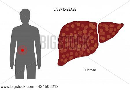 Fibrosis Logo, Scar Tissue In Liver. Damaged And Scarred Liver. Pain, Inflammation And Damaged Cells