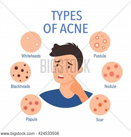 Types Of Acne On The Skin Infographic In Flat Design. Worry Man On Pimple Skin Problem.