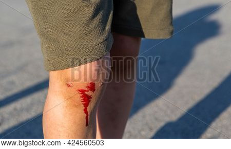 The wound on the child's leg, The child fell and broke his knee