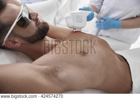 Beautician Removes Hair From Are Chest Of Sportive Man At Photoepilation Procedure In Clinic