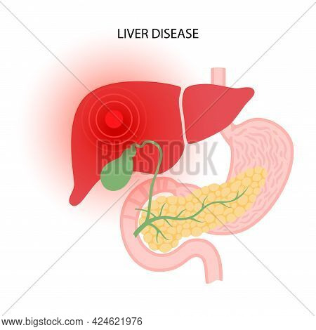 Liver Disease Logo. Fibrosis, Cirrhosis, Fatty Liver Or Cancer Concept. Pain, Tumor Or Damage In Hum