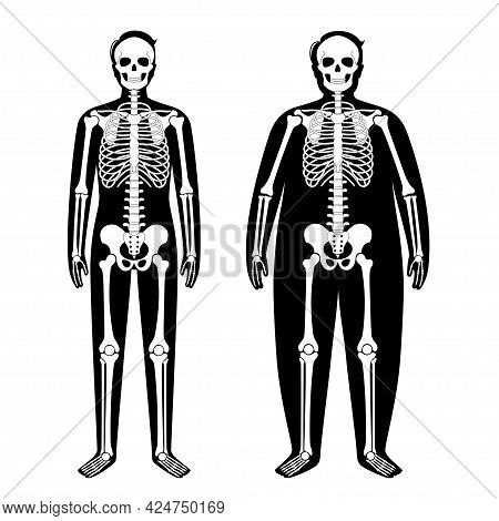 Skeleton System Human Bones Concept. X Ray With Overweight And Normal Male Silhouette. Skull, Arms,