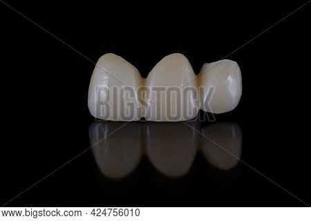 High-quality Dental Prosthesis Made By Dental Technician, Prosthesis With A Pink Gingiva To Fix Afte