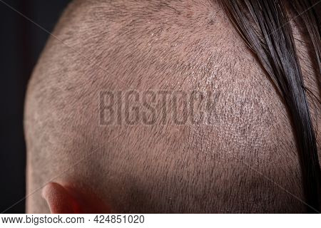 Close Up Male Haircut. Hairstylist Bold Head. Barbershop Concept. Man Barber Hairstylist. Short Hair