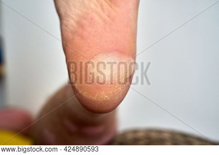 Closeup Of A Large Blister On The Heel Of A Foot. A Large Blister Has Formed On The Heel Of A Foot D