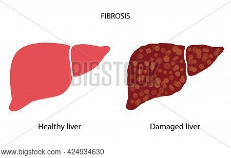 Fatty Liver Logo. Liver Disease, Non Alcoholic Steatohepatitis Concept. Healthy And Damaged Human In