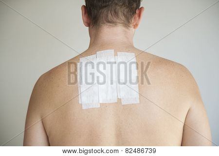 bare man back with contact allergy test in white adhesive plaster poster