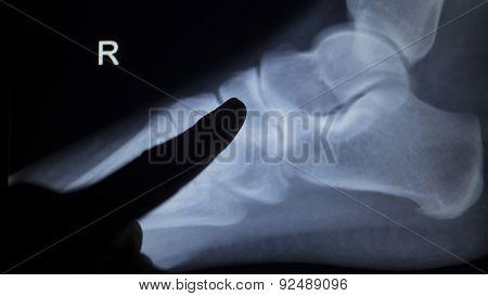 X-ray Orthopedics Scan Of Foot Injury