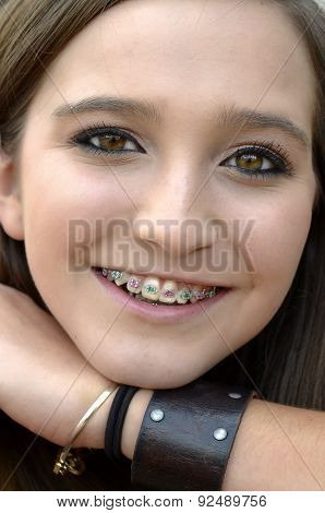 Pretty Teenager With Braces