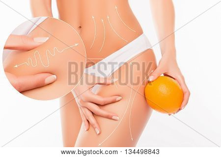No To Cellulite! Close Up Photo Collage Of Woman  Showing Her Skin Body With Arrows And  Holding Ora