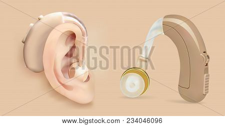 Vector Hearing Aid Behind The Ear. Sound Amplifier For Patients With Hearing Loss. Treatment And Pro