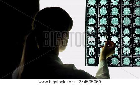 Neurosurgeon Looking At Patient Brain X-ray, Pointing Image, Hospital Internship, Stock Footage