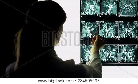 Neurosurgeon Examining Blood Vessels X-ray, Making Diagnosis, Patient Treatment, Stock Footage