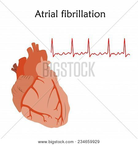 Human Heart. Atrial Fibrillation. Anatomy Flat Illustration. Red Image, White Background. Heartbeat,