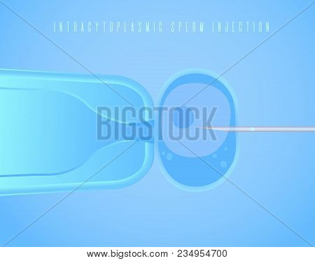Intracytoplasmic Sperm Injection, In Vitro Fertilization, Icsi Process, Ivf. Vector Illustration For