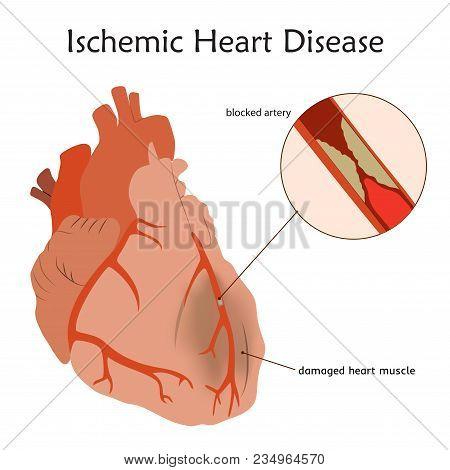 Ischemic Heart Disease. Blocked Artery, Damaged Heart Muscle. Anatomy Flat Illustration. Colorful Im