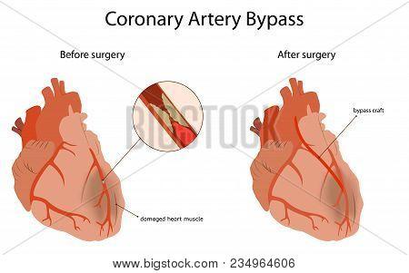 Coronary Artery Bypass, Medical Flat Vector Illustration. Damaged Heart Muscle, Blocked Artery, Bypa