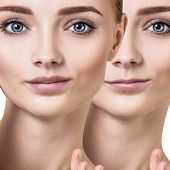 Beautiful lips of young woman. Before and after lips filler injections. Fillers concept. poster