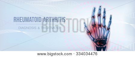 Rheumatoid Arthritis Or Osteoarthritis Hand Sore Joints Concept. Bones Of Hand Skeleton. Horizontal