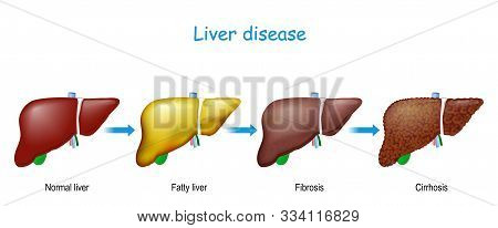 Liver Disease. From Healthy Internal Organ To Fatty Liver (hepatic Steatosis), Fibrosis, And Cirrhos