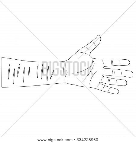 Man Hand With Scars On Wrist After Suicide Attempt. Isolated Outline Stock Vector Illustration