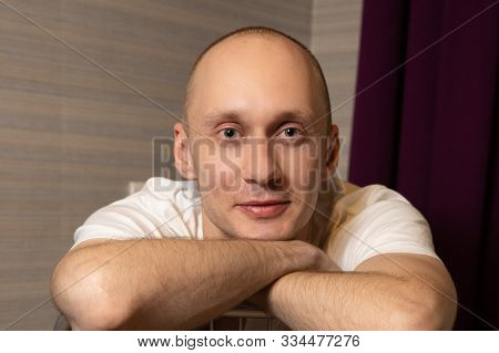 A 30-year-old Man Without Hair Laid His Chin In His Hands And Looks At The Camera. Portrait Of A You
