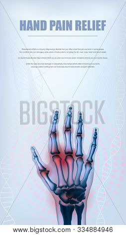 Rheumatoid Arthritis Or Osteoarthritis Hand Sore Joints Concept. Bones Of Hand Skeleton. Vertical Li