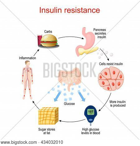 Insulin Resistance. Pathological Condition In Which Cells Fail To Respond Normally To The Hormone In