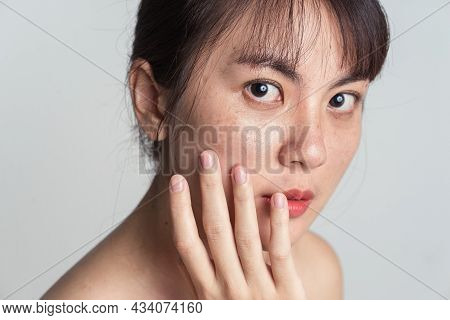 Young Asian Woman Worry With Freckle On Face And Hand Gently Touching Cheek Applying Skincare Cosmet