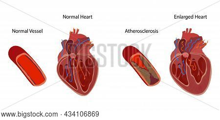 Normal And Enlarged Heart, Cardiomegaly, Atherosclerosis. Direction Of Blood Flow. Inner Inside View