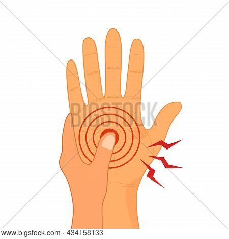 Man Or Woman With Painful Hand In Flat Design On White Background. Numbness Pain.