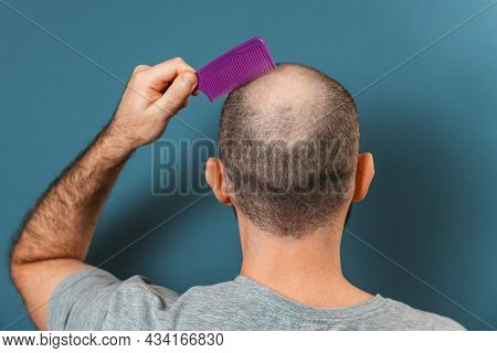 A Man Combs His Bald Head With A Comb. Blue Background. Rear View. The Concept Of Alopecia And Baldn