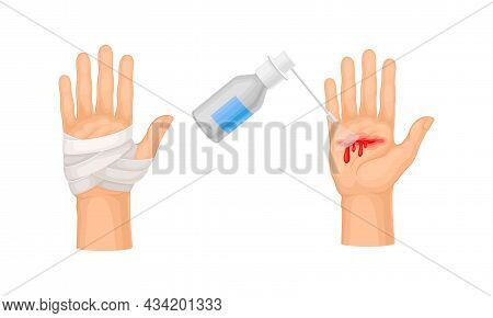 Skin Burn Injury Treatment. First Aid For Thermal Wound. Medicine For Cure And Bandaging Vector Illu
