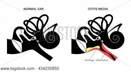 Otitis Media, Ear Disease Concept. Pain And Inflammation, Earache In The Human Head. Medical Checkup