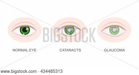 Healthy, Cataract And Glaucoma Eye Closeup View. Eyeball With Normal And Unhealthy Lens. Aging Visua