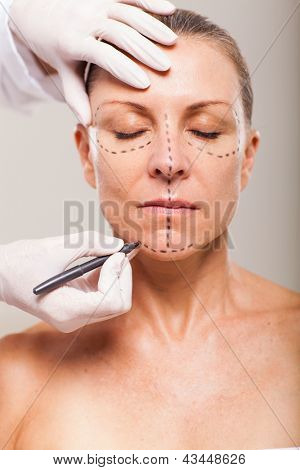 senior woman with correction lines preparing for plastic surgery