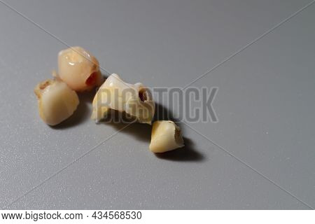 The Baby's Baby Teeth, Affected By Caries, Fell Out Of The Child.