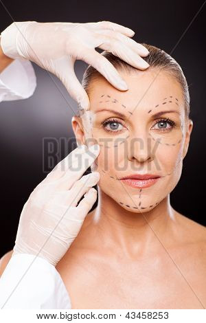 doctor hands preparing middle aged woman for face lifting surgery