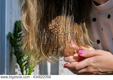 Hair Loss On The Comb, Massage Wooden Brush With A Clump Of Hair, Problem Of Growth, Hair Care. Hair