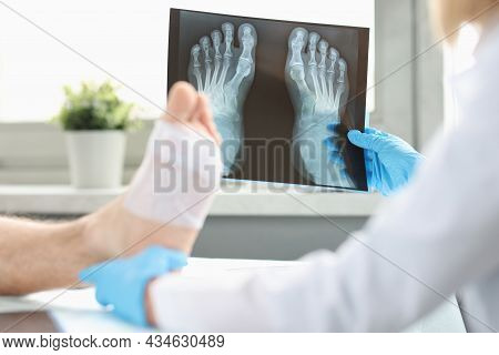 Doctor Conducts Physical Examination Of Patient With Bandaged Leg And Examines X-ray Image